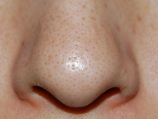 脂性肌の乳液